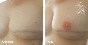 Tepeltattoo na borstamputatie. Bekijk de voor en na foto.