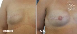 Borstreconstructie ivm BRCA-gen, daarna blijvende tepeltatoeage door Inge Pip.